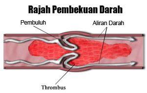 pembekuan-darah